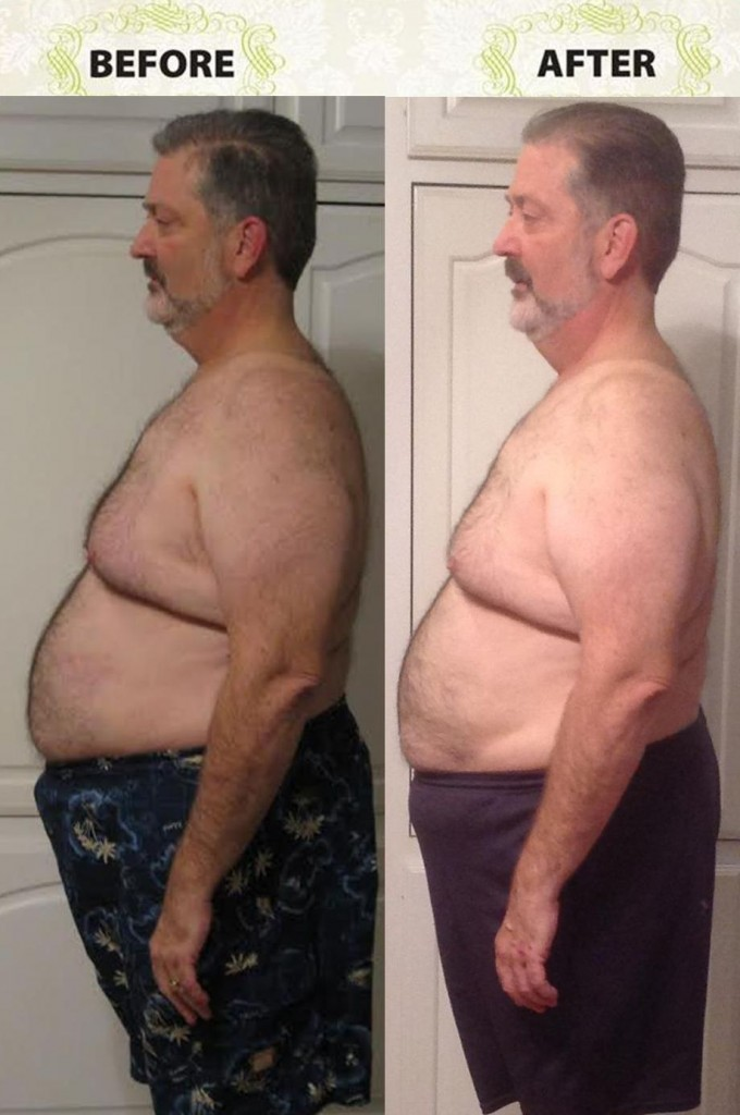 Phil Before After Picture