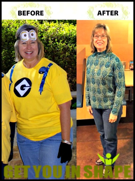 Sharon Kirby Before & After